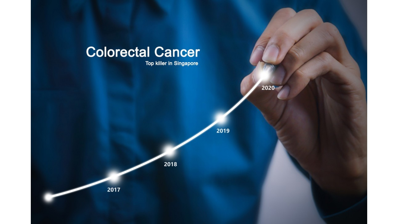 Colorectal cancer numbers far too high, say experts